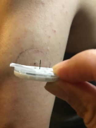 連續血糖針
